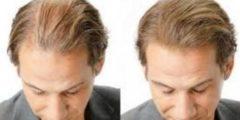 الطريقة المثلى لمنع تساقط الشعر وتكثيفه