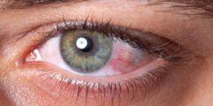 ما علاج ضغط العين